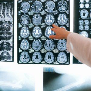 Alzheimer'a Yakalanmamak İçin Nasıl Beslenmeliyiz?